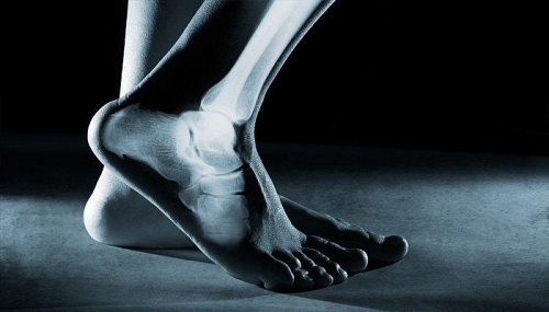 عظام قوية وصحية