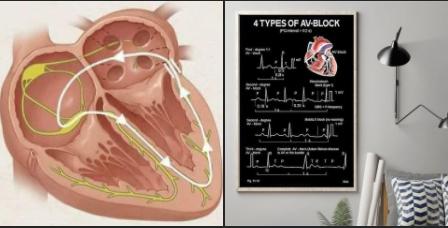 اختلال كهرباء القلب